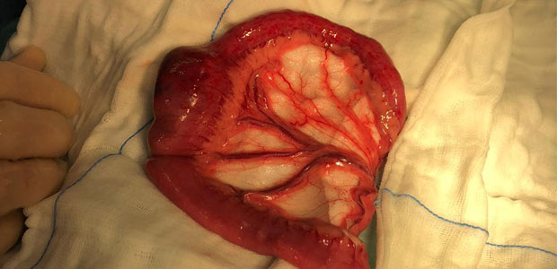 shot of intestine with huge lump of rubber lodged into it